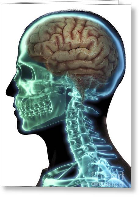 Human Brain Greeting Card by Science Picture Co