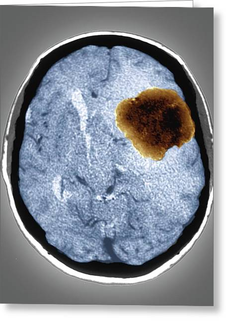 Benign Brain Tumour Greeting Card by Zephyr