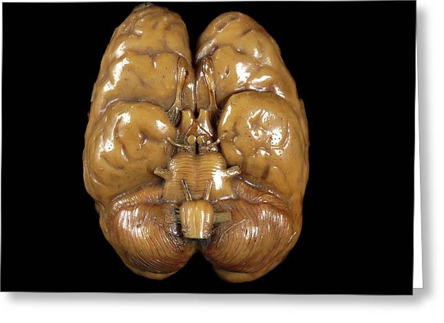 Brain Model Greeting Card by Javier Trueba/msf