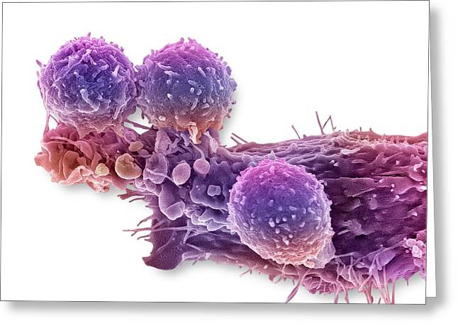 Cancer Cell And T Lymphocytes Greeting Card