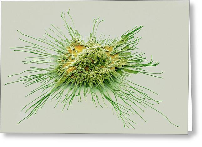 Dendritic Cell Greeting Card