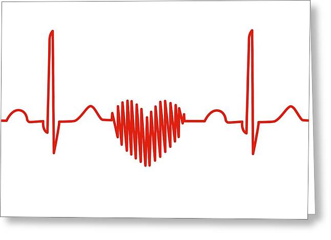 Heart-shaped Ecg Trace Greeting Card