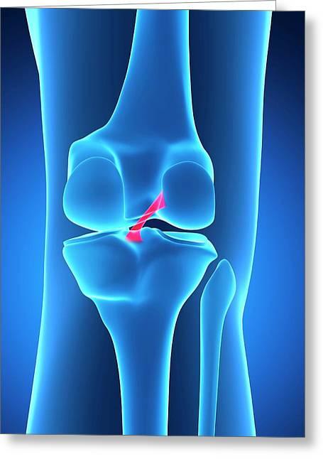 Human Knee Ligament Greeting Card by Sebastian Kaulitzki