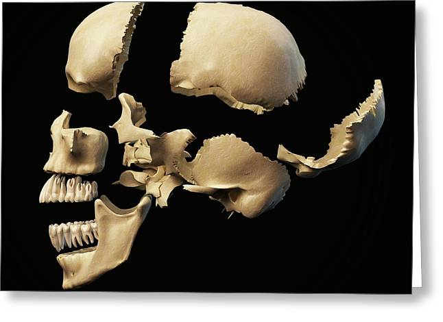Human Skull In Sections Greeting Card by Leonello Calvetti
