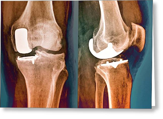 Partial Knee Replacement Greeting Card by Zephyr