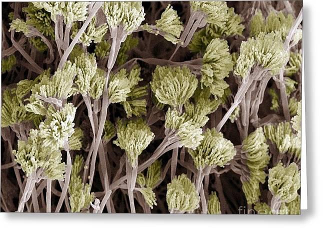 Penicillium Fungus, Sem Greeting Card by Steve Gschmeissner
