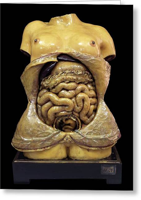 Pregnancy Model Greeting Card by Javier Trueba/msf