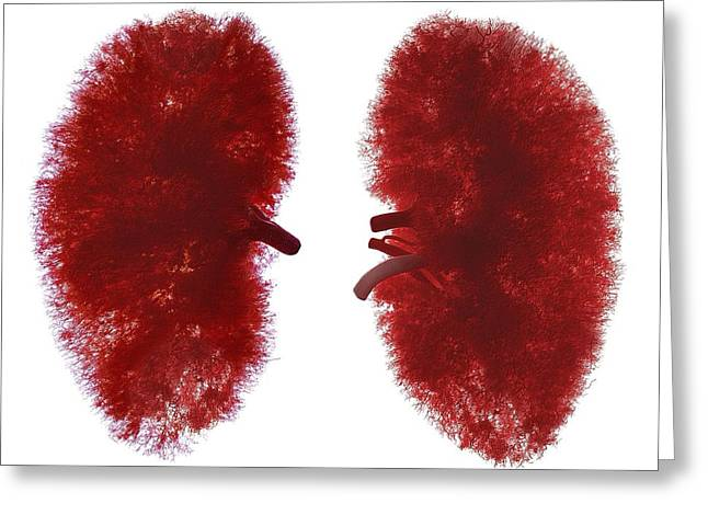 Resin Cast Of Blood Supply To Kidneys Greeting Card by Science Photo Library
