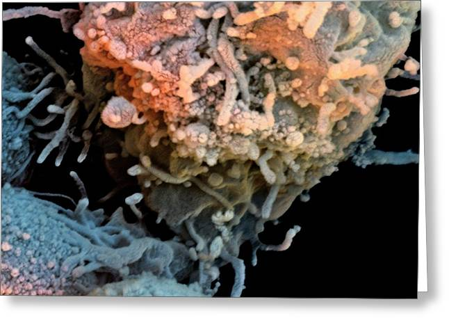 T-lymphocyte And Iron Particles Greeting Card by Stefan Diller