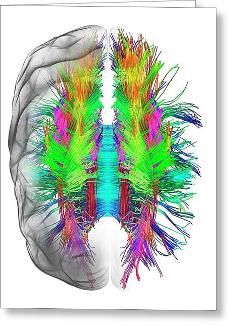 White Matter Fibres And Brain Greeting Card by Alfred Pasieka