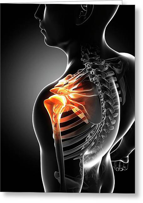 Shoulder Pain Greeting Card by Sciepro/science Photo Library