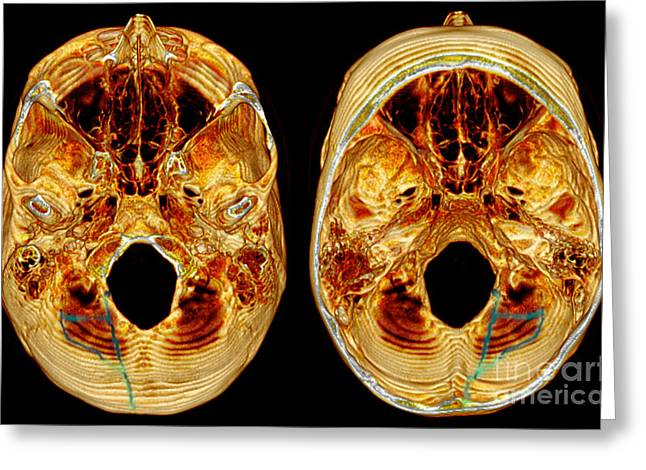 3d Ct Reconstruction Of Skull Fracture Greeting Card by Scott Camazine