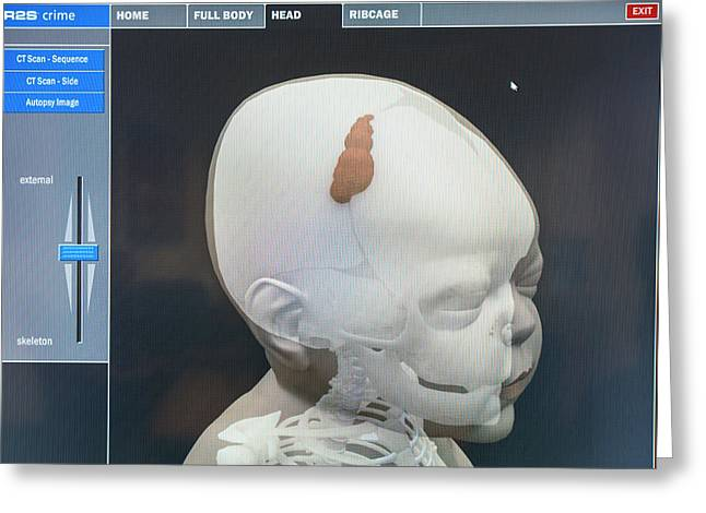 3d Virtual Autopsy Of A Child Greeting Card by Louise Murray