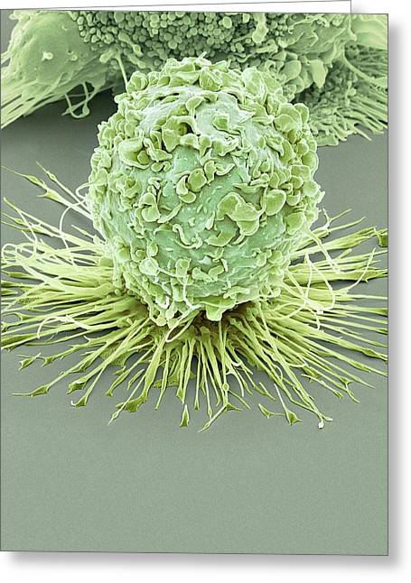Activated Macrophage Greeting Card