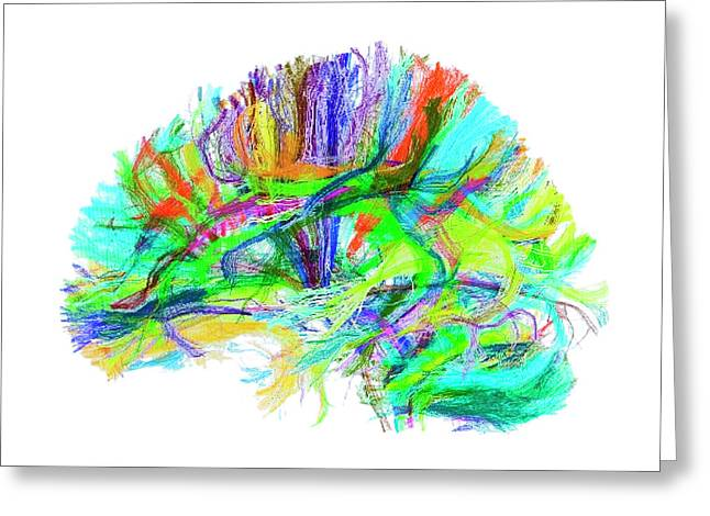 Advanced Mri Brain Scan Greeting Card by Philippe Psaila/science Photo Library