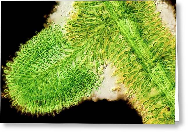 Batrachospermum Alga Filament Greeting Card
