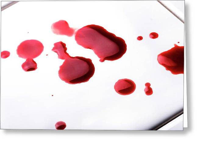 Blood Spatter Greeting Card by Cordelia Molloy