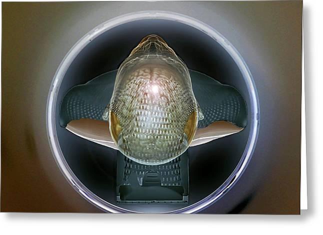 Brain Tumour Radiotherapy Treatment Greeting Card