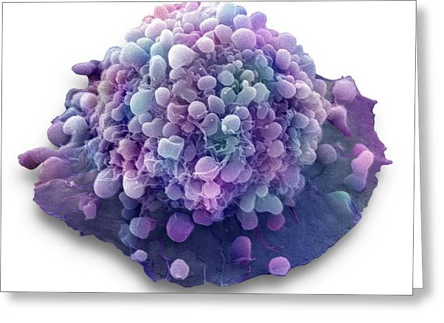 Cervical Cancer Cell Greeting Card by Steve Gschmeissner