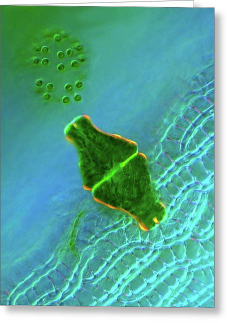 Desmid And Dictyosphaerium Green Algae Greeting Card