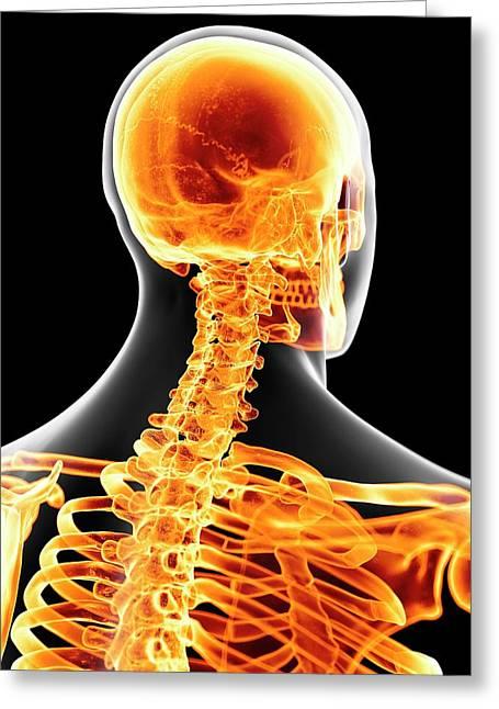 Human Neck Bones Greeting Card by Sciepro