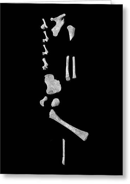 Infant Bones From Roman Britain Greeting Card by Natural History Museum, London/science Photo Library