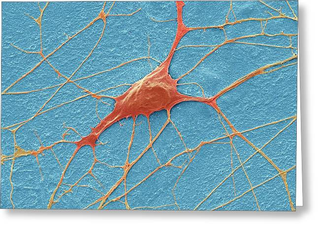 Motor Neurone Greeting Card by Steve Gschmeissner