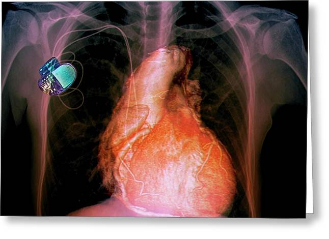 Pacemaker Greeting Card by Zephyr/science Photo Library