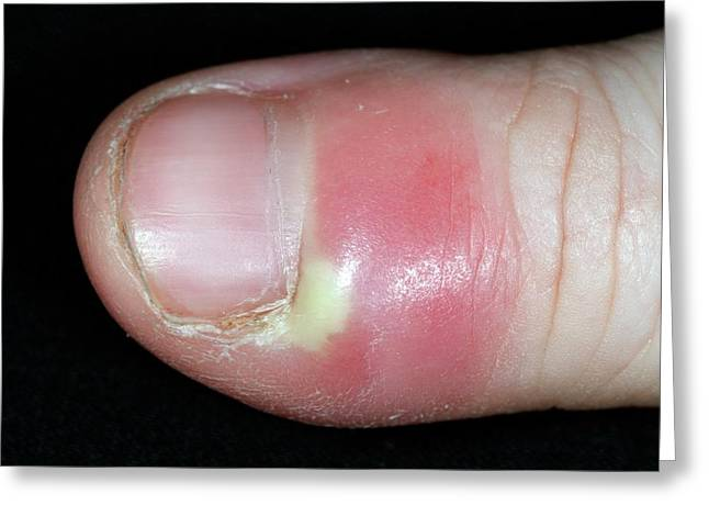 Paronychia Infection Of The Thumb Greeting Card by Dr P. Marazzi/science Photo Library