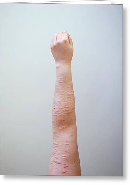 Scarring Caused By Self Harm Greeting Card by Joti/science Photo Library