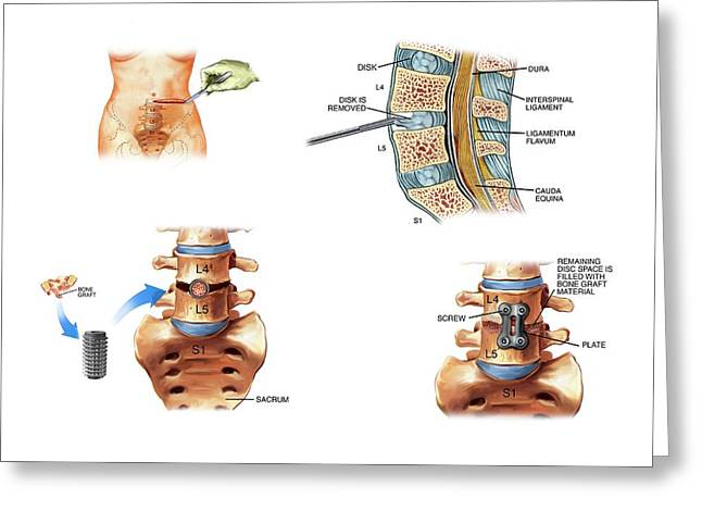 Surgery To Fuse The Lumbar Spine Greeting Card by John T. Alesi