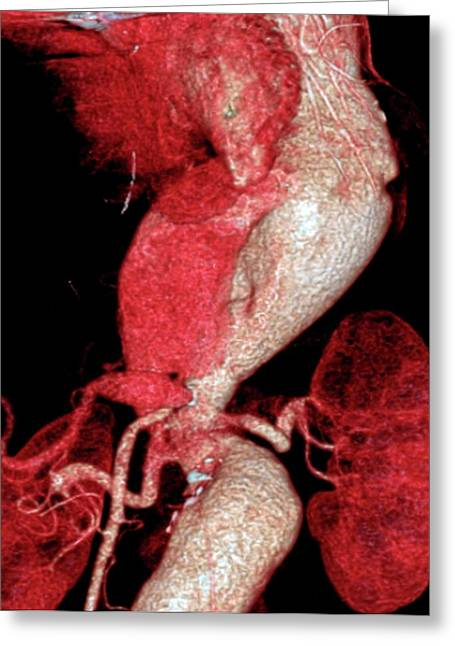 Arterial Aneurysms In Marfan Syndrome Greeting Card