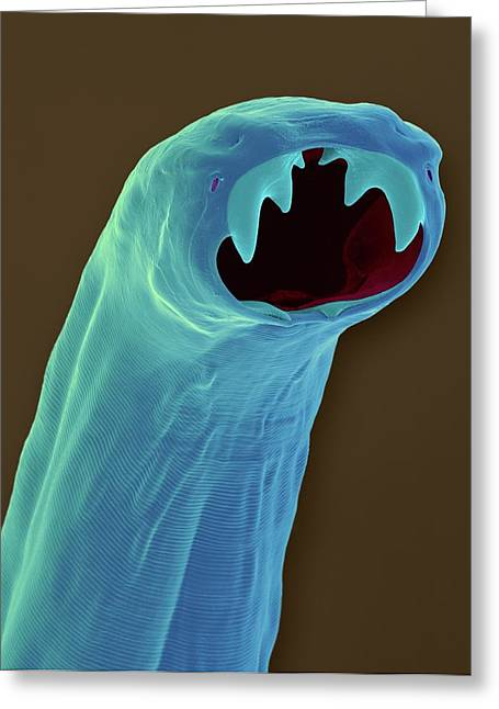 Cat Hookworm (ancylostoma Braziliense) Greeting Card by Dennis Kunkel Microscopy/science Photo Library