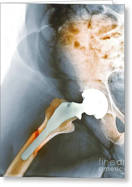 Failed Hip Resurfacing, X-ray Greeting Card by Du Cane Medical Imaging Ltd.