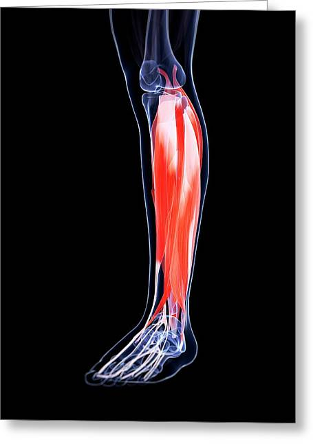 Human Calf Muscles Greeting Card by Sebastian Kaulitzki