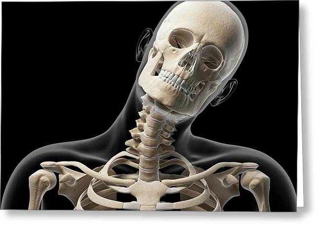 Human Head Bending Sideways Greeting Card