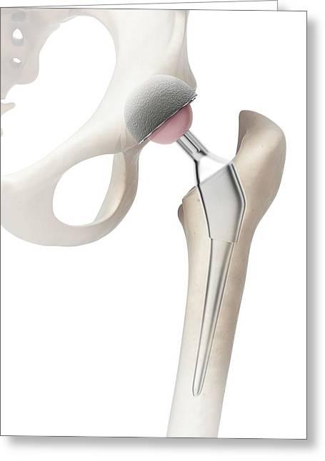 Human Hip Replacement Greeting Card by Sebastian Kaulitzki