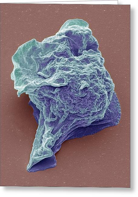 Lymphoma Cancer Cell Greeting Card