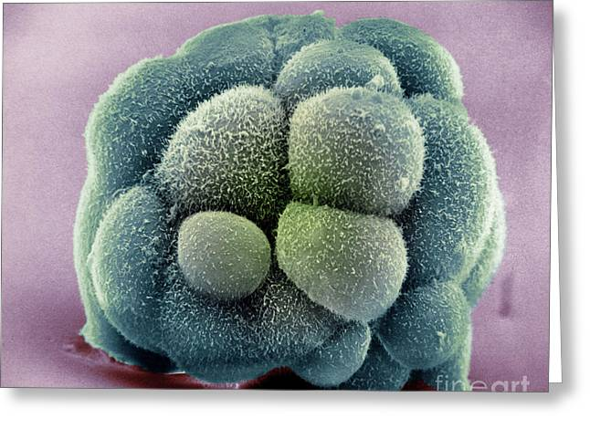 Mouse Embryo Greeting Card by David M. Phillips