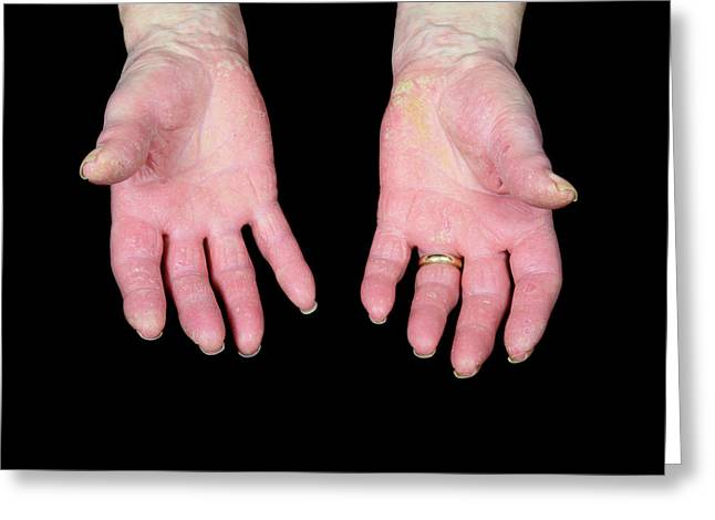 Psoriatic Arthritis Greeting Card by Science Photo Library