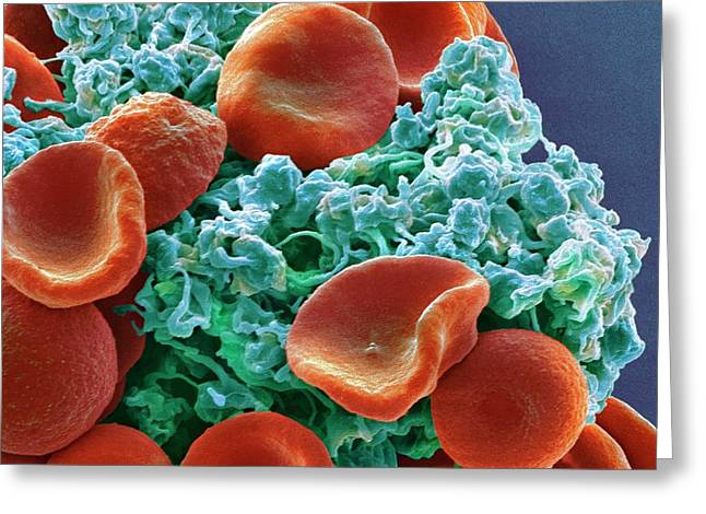 Red Blood Cells And Platelets Greeting Card by Steve Gschmeissner