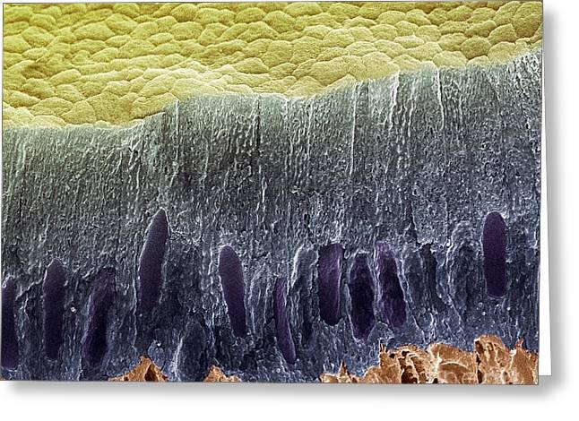 Tooth Enamel Formation, Sem Greeting Card by Steve Gschmeissner