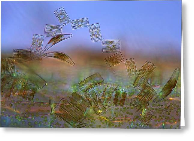 Diatoms, Light Micrograph Greeting Card by Science Photo Library