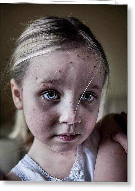 Girl With Chickenpox Greeting Card