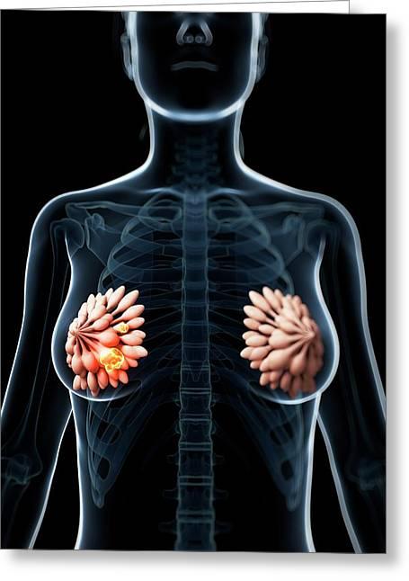 Human Breast Cancer Greeting Card by Sebastian Kaulitzki
