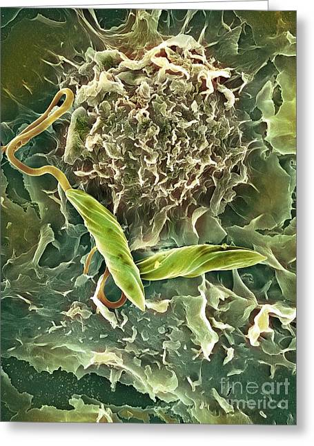Macrophage Attacking A Foreign Body, Sem Greeting Card