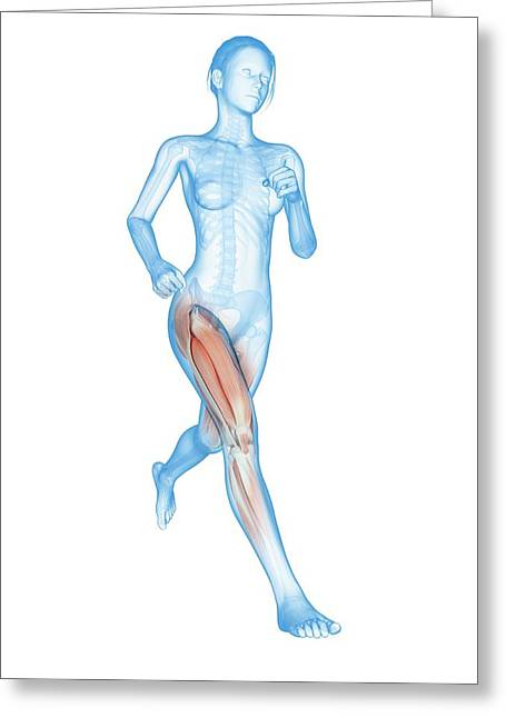 Muscular System Of A Runner Greeting Card by Sebastian Kaulitzki