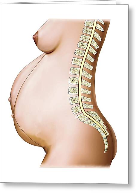 Pregnant Woman Greeting Card by Asklepios Medical Atlas