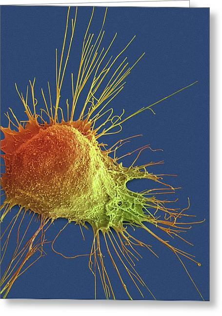 Prostate Cancer Cell Greeting Card by Steve Gschmeissner