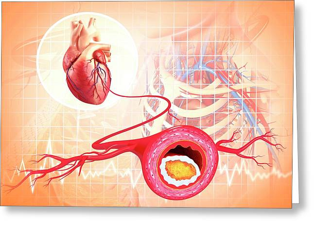 Atherosclerosis Greeting Card by Pixologicstudio/science Photo Library